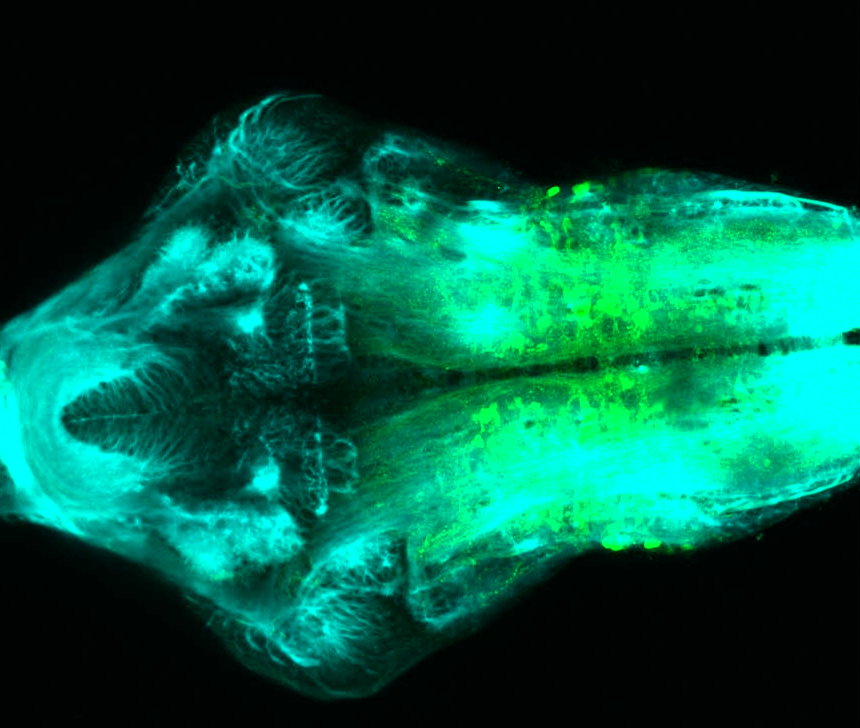 Tg(slc6a5:GFP) ventral 4dpf with tubulin(cyan)