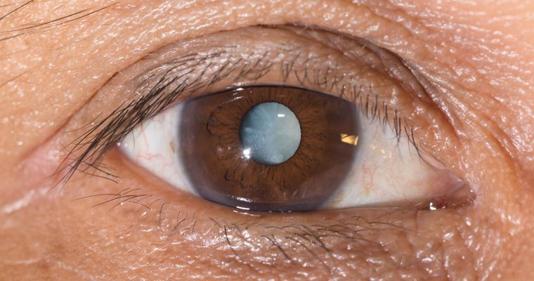 cataracte.jpg