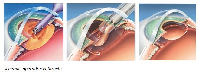 operation chirurgie cataracte implant.jpg
