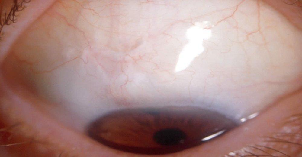 Une-bulle-de-filtration chirurgie glaucome.jpg