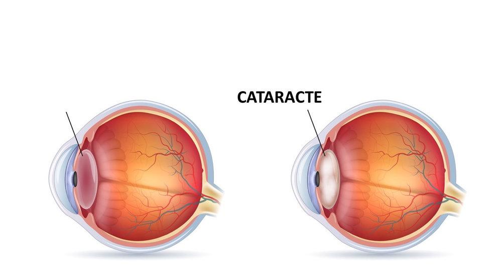 Cataracte-ophtalmologue-essonne-palaiseau-colas.jpg