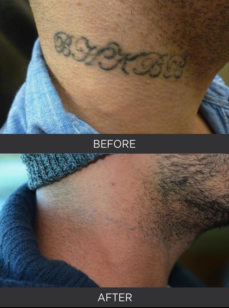 Ogden Clinic Dermatology Tattoo Removal Dermatology Utah