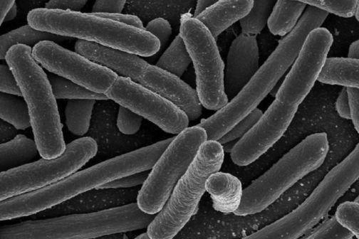 e_coli_large20161104-16640-p4dudx.jpg