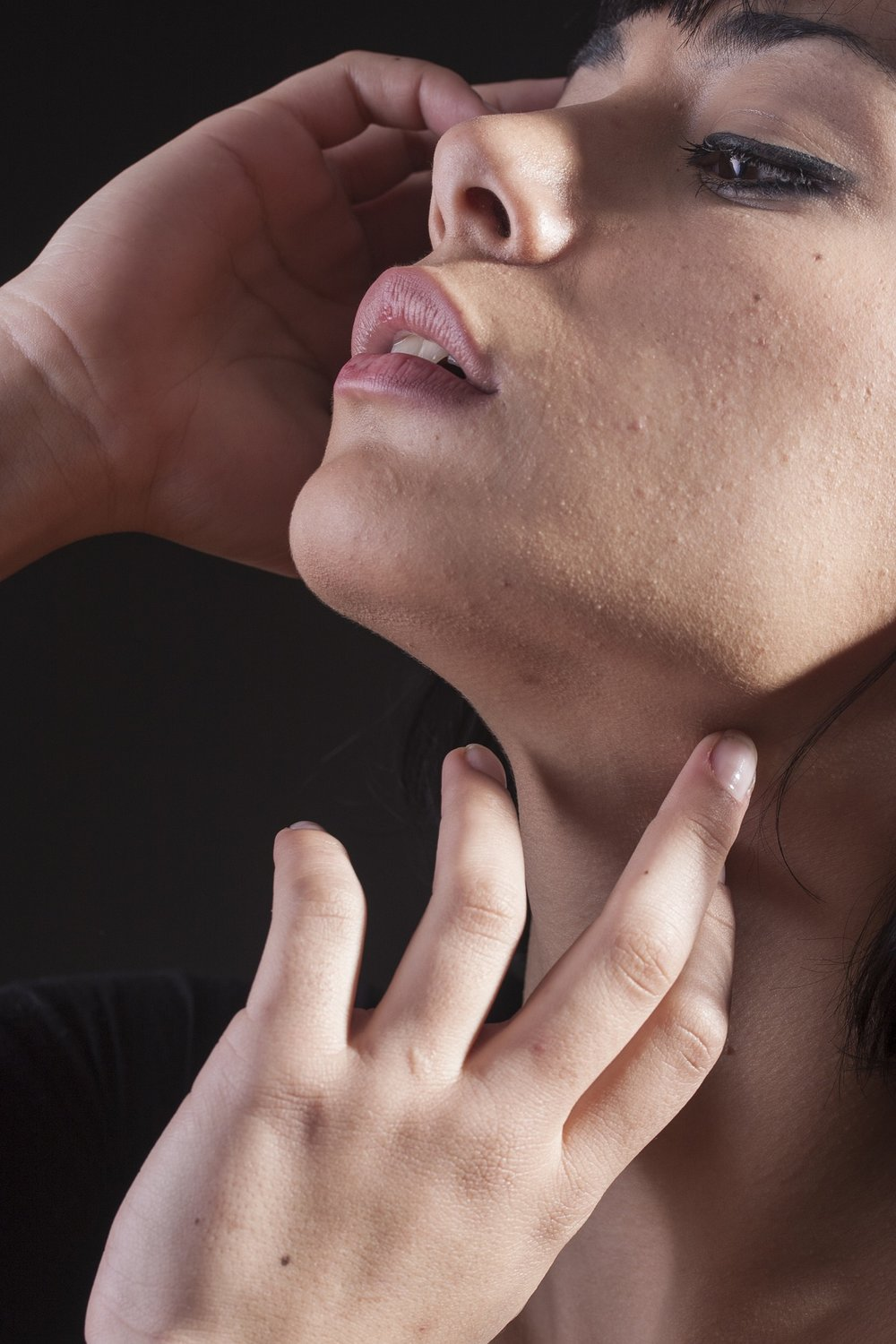 Muscle Tension Dysphonia and Voice Therapy
