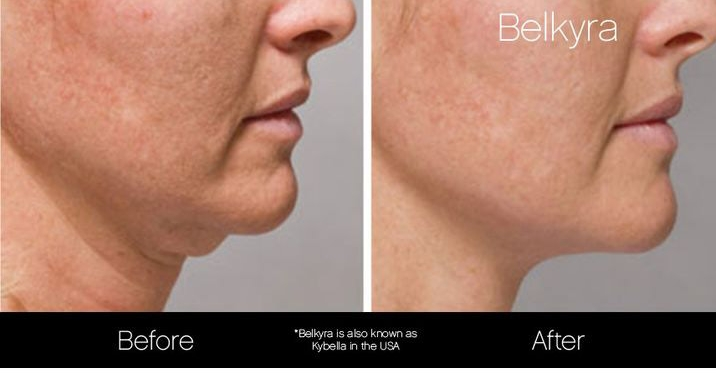 belkyra-double-chin-treatment-before-after-2.jpg