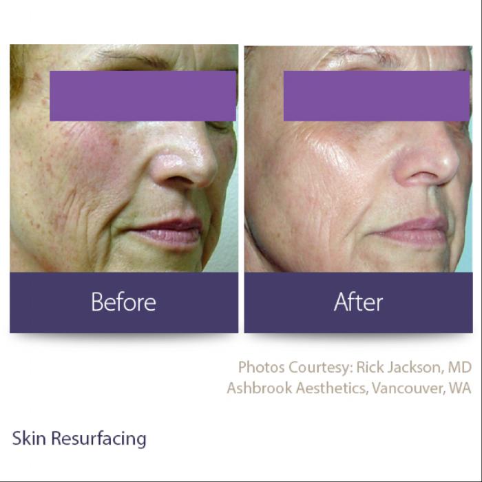 Skin resurfacing image.png