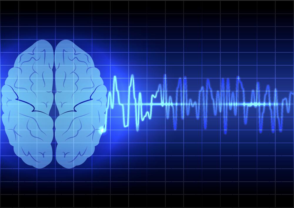 ....Brain-Computer Interface..Interface cerveau-machine....