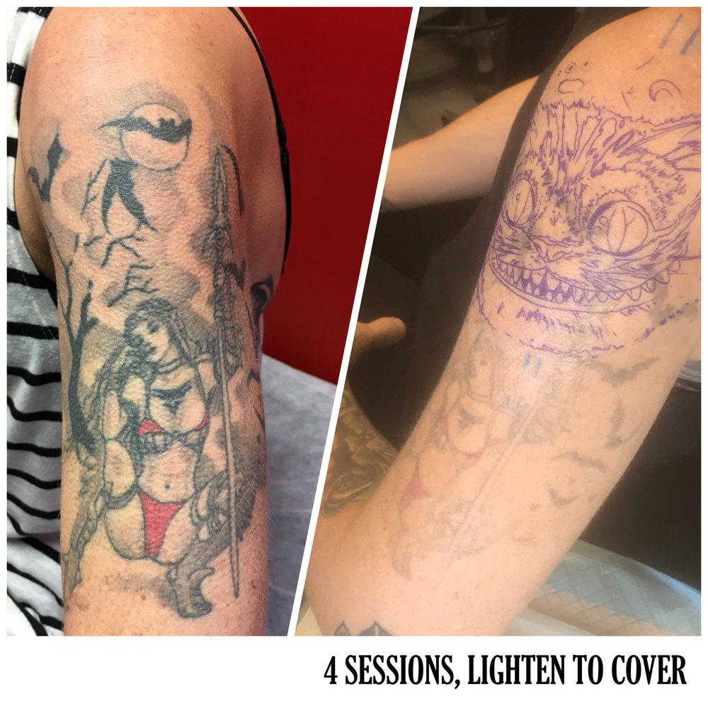 RESULTS — South West Laser Tattoo Removal