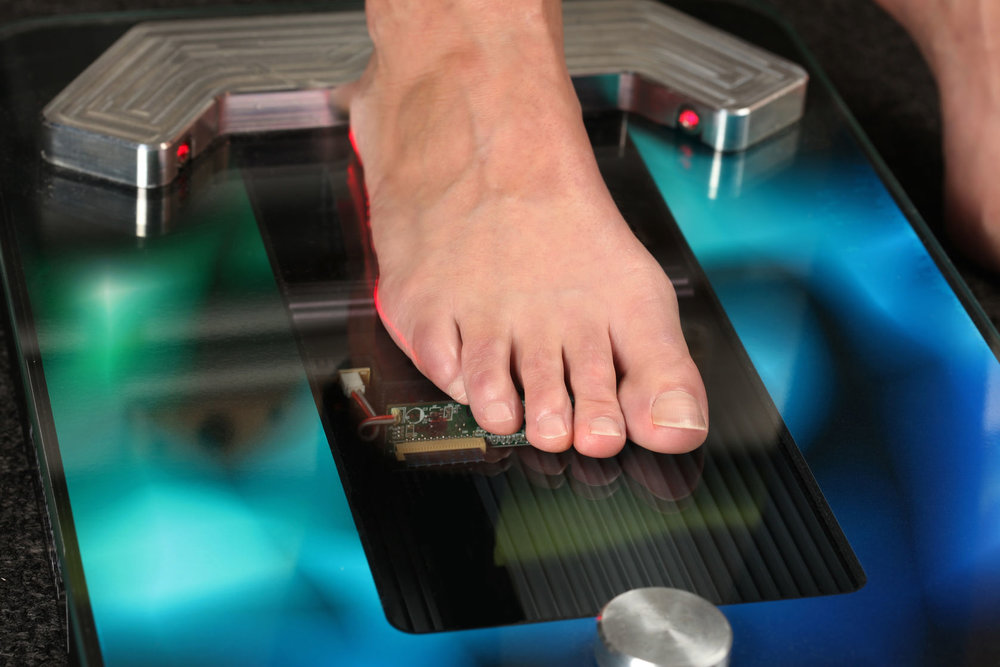 3D Foot Scan & orthotics