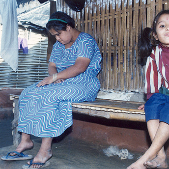In our society people are often unkind to disabled people. If there is an able and a disabled child, the able child will be given good clothes and the disabled child will be in rags. In the camps we look after disabled people. Aite Maya  / PhotoVoice / LWF