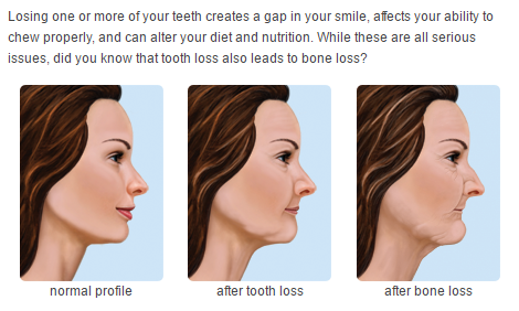 why consider dental implants.PNG