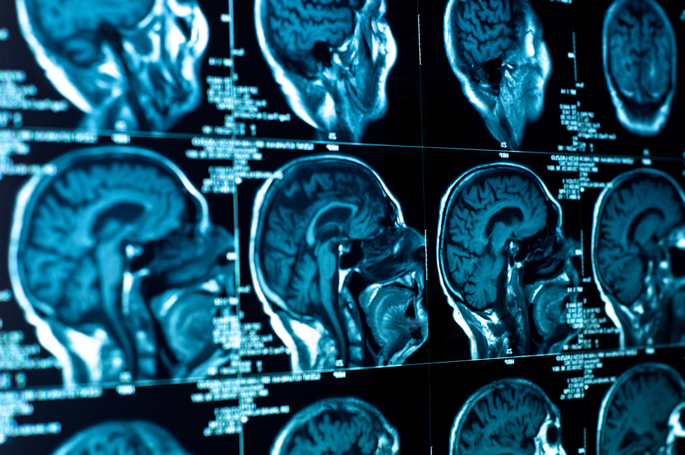 Parkinson's Disease Breakthrough With New Stem Cell Therapy