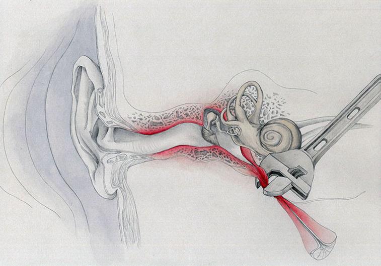 Eustachian Tube Injury