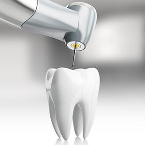 Tooth Drill Animate 300 300.jpg