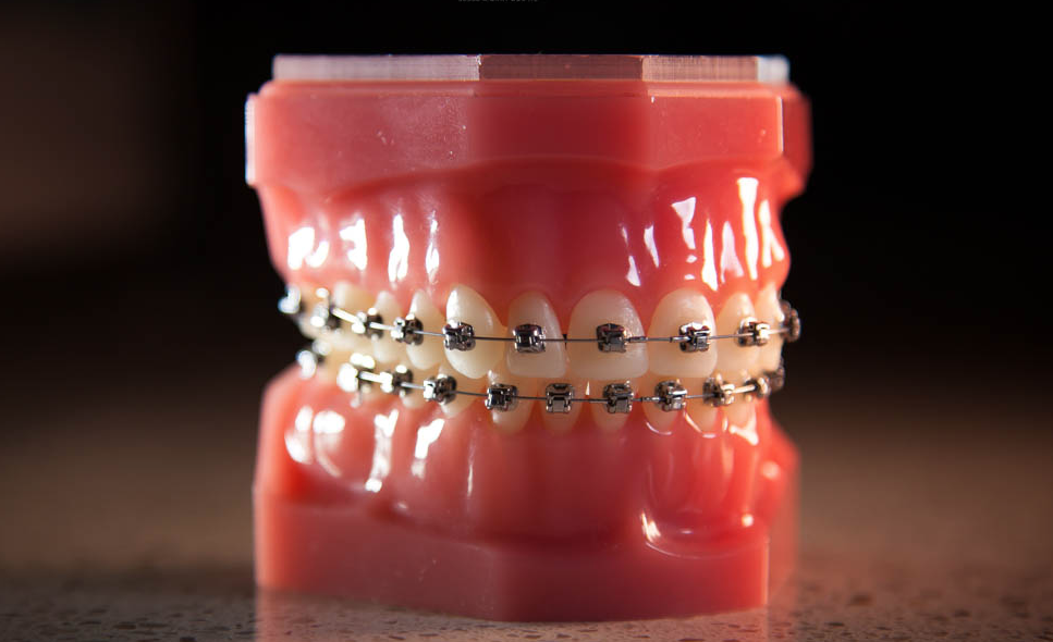 Hodges Ortho Damon Braces.png