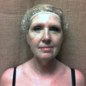 woman aged 54 before microcurrent therapy
