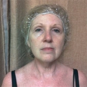 woman aged 54 after microcurrent therapy - Eye lift Cheek and Mouth area are lifted Improved skin tone Diminished wrinkles Reduction in dark puffiness under the eyes