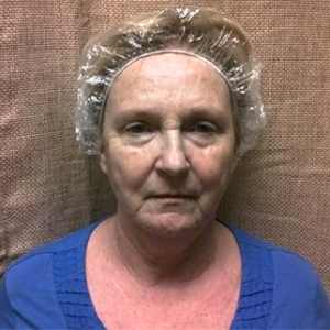woman aged 66 before microcurrent sessions