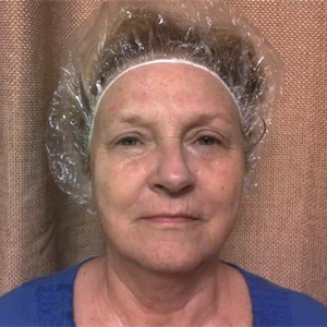 woman aged 57 after 7 microcurrent sessions Brow lift Marionette lines around mouth have disappeared Lift of the Cheeks and Nasolabial area (mouth/nose area) Diminished wrinkles between the eyes, forehead and above lip Reduction in puffiness under the eyes