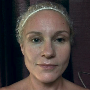 woman age 42 after Microcurrent - sculpted cheekbones, diminished wrinkles, lifted eyes and brows, reduced under eye circles