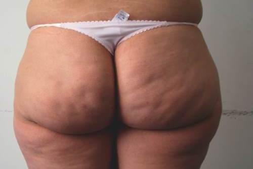 Buttocks-liposuction-Illuminate.jpg