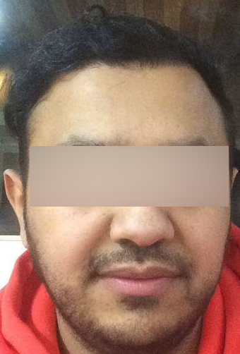 Results of his FUE treatment a number of months after treatment