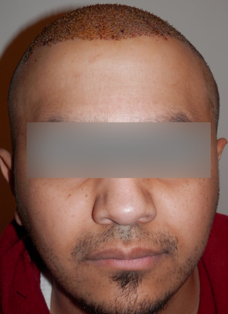 During his FUE treatment