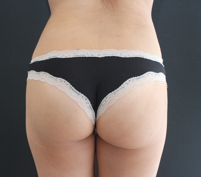 Seen here only weeks after the BBL procedure, the patient's buttocks show much rounder and firmer shape and her hips a more defined look too. More results will continue to be seen.