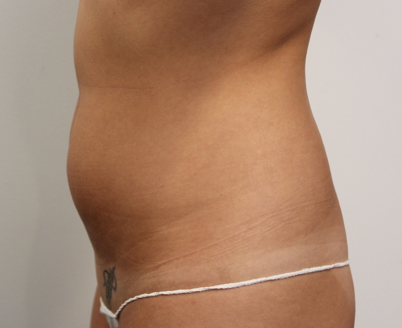 Prior to liposuction, Dr Adam's patient was unhappy with her lack of tone and fatty deposits around hips and stomach