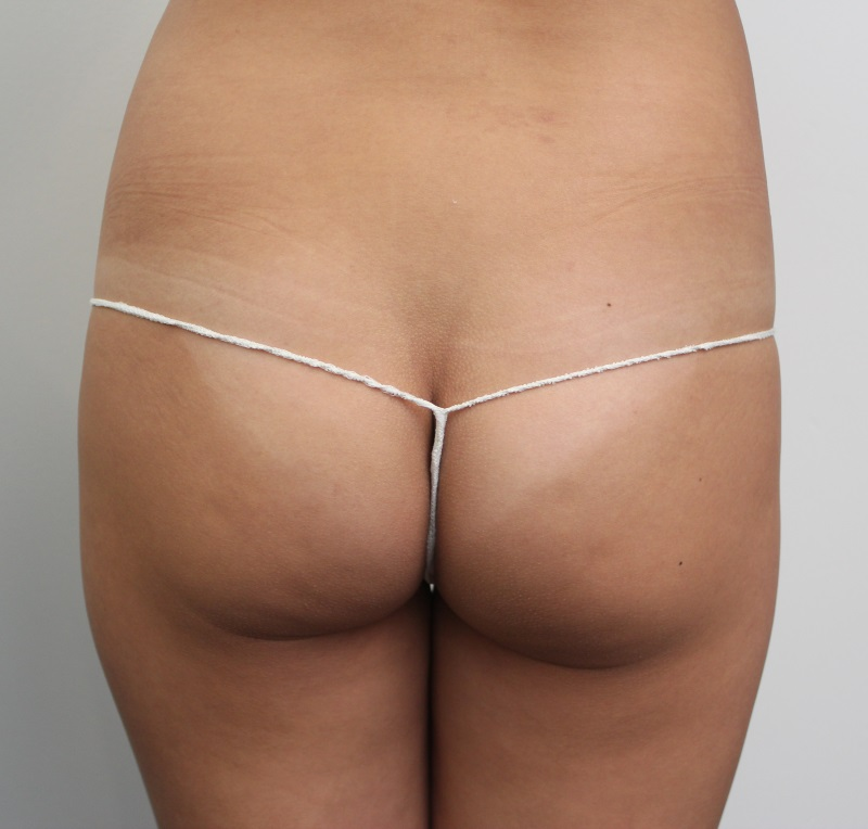 Dr Adam's client was unhappy with her buttocks, feeling they lacked shape and tone. Dr Adam's plan was to remove her tummy fat and place in her buttocks.