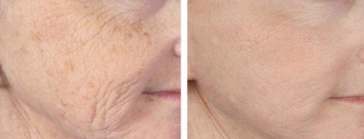 Foto voor en na aantal behandelingen met de DermaPen