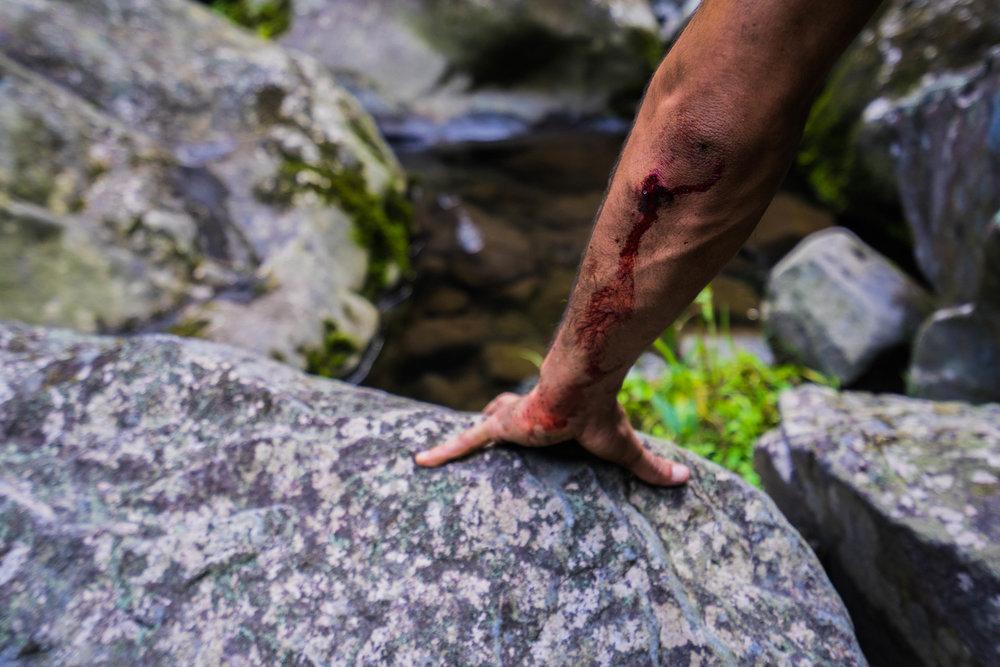 Cortada en mi brazo después de caer del acantilado @lightsaint