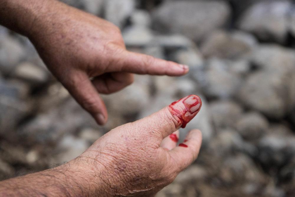Herida hecho por el andarivel