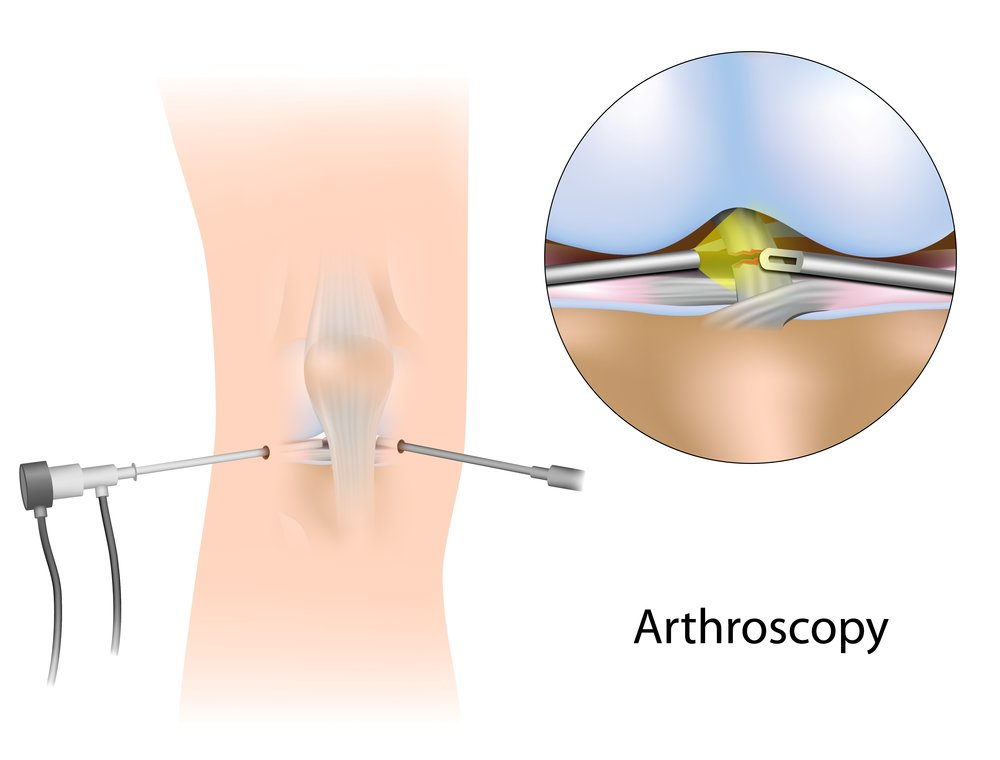 arthroscopy
