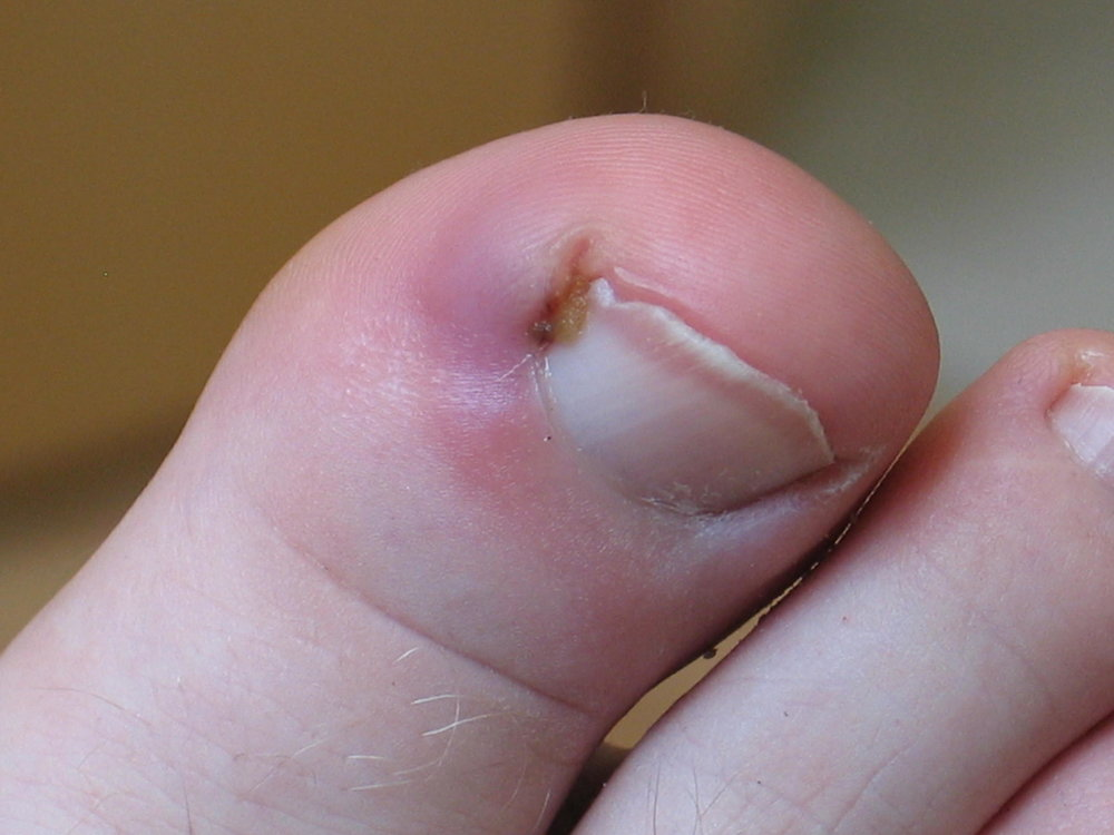Ingrown Toenails Ingrown nails, the most common nail impairment, are nails whose corners or sides dig painfully into the soft tissue of nail grooves, often leading to irritation, redness, and swelling. Usually, toenails grow straight out. Sometimes, however, one or both corners or sides curve and grow into the flesh. The big toe is the most common location for this condition, but other toes can also become affected.