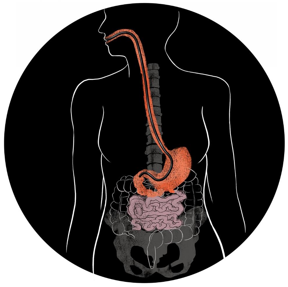 EsophagogastroDuodenoscopy | EGD | Upper Endoscopy