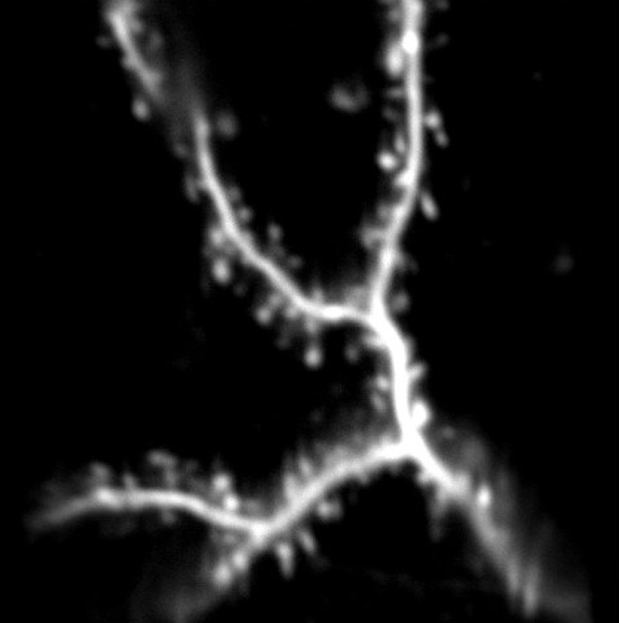 In vivo two-photon imaging (left) of dendritic branch in tree shrew in V1.