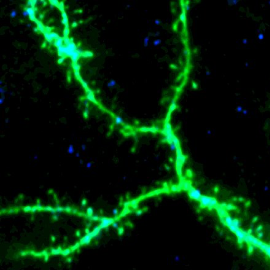 Confocal image of same dendritic branch (tangential section). Blue color indicates axonal terminals labeled by   mCerulean.