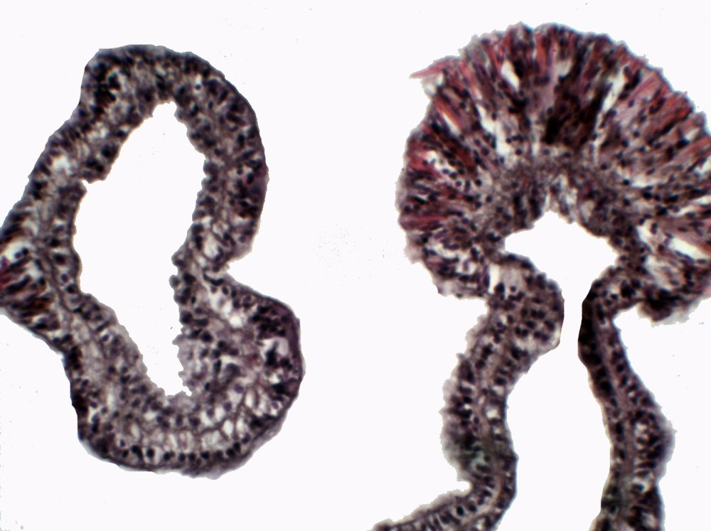 transverse section of a tentacle and a nematocyst