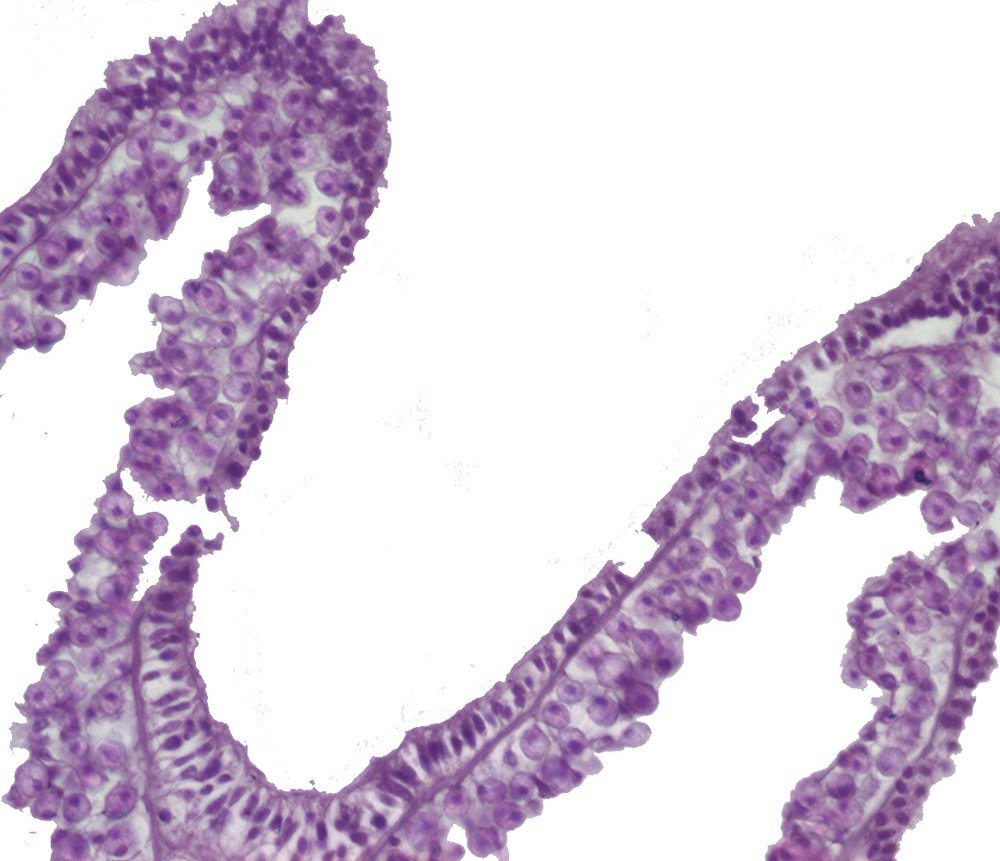 A portion of a  Seriatopora hystrix  polyp