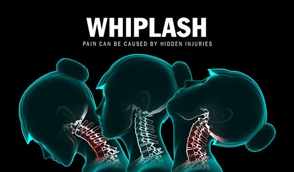 whiplash-WEB.jpg