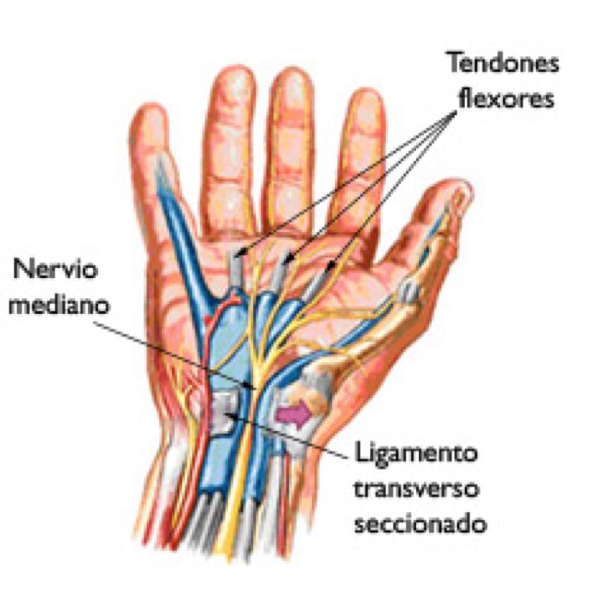 Síndrome de Túnel Carpal — Dr. Jaime Ulloa