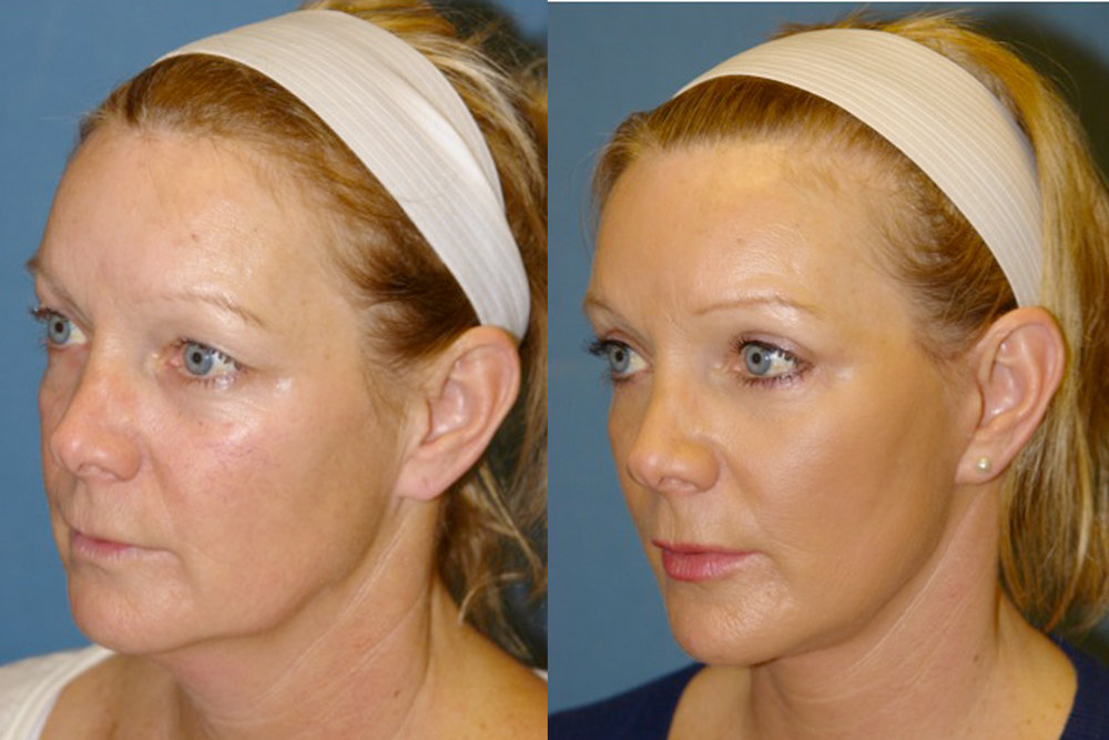 Blepharoplasty and Mini Facelift