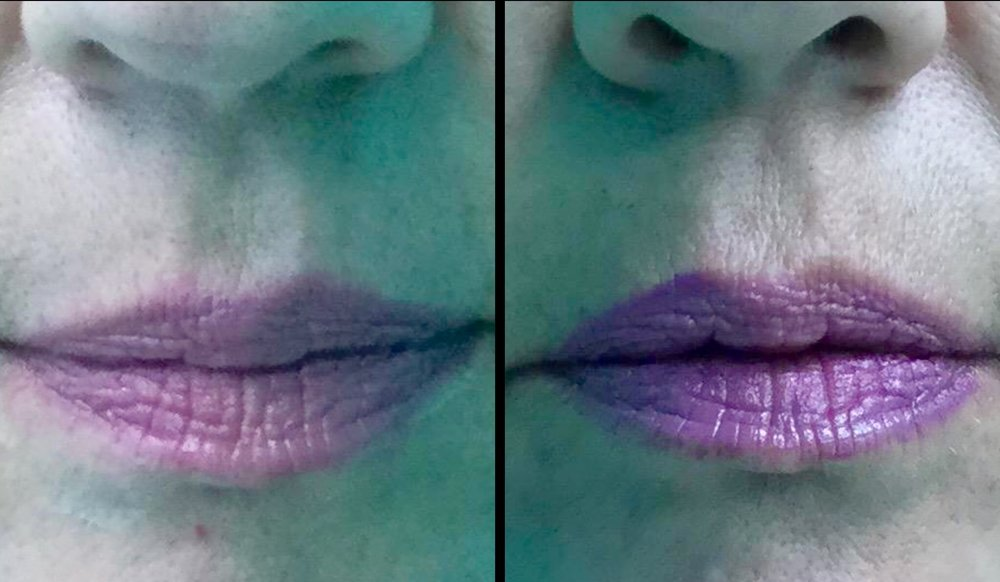 Filler - Lips