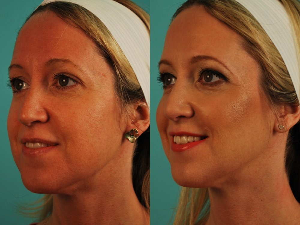 Filler - Voluma in Cheeks
