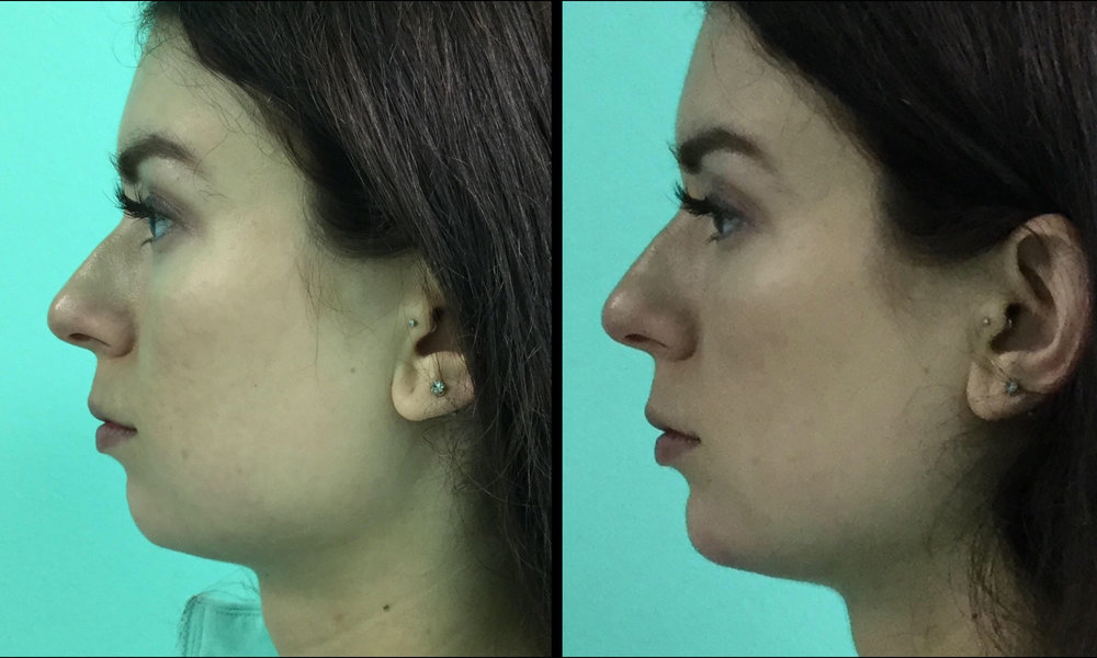 Filler - Voluma in Chin