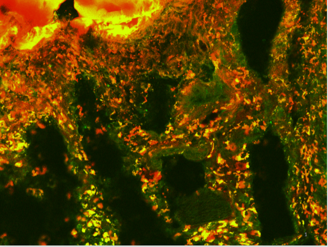 Fluroescence microscopy image of dendrimer-dextran adhesive hydrogel doped with dendritic pro-drug (red), which selectively enters EGFR-overexpressing TNBC cells (green) in vivo.