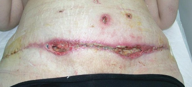 Infection from liposuction