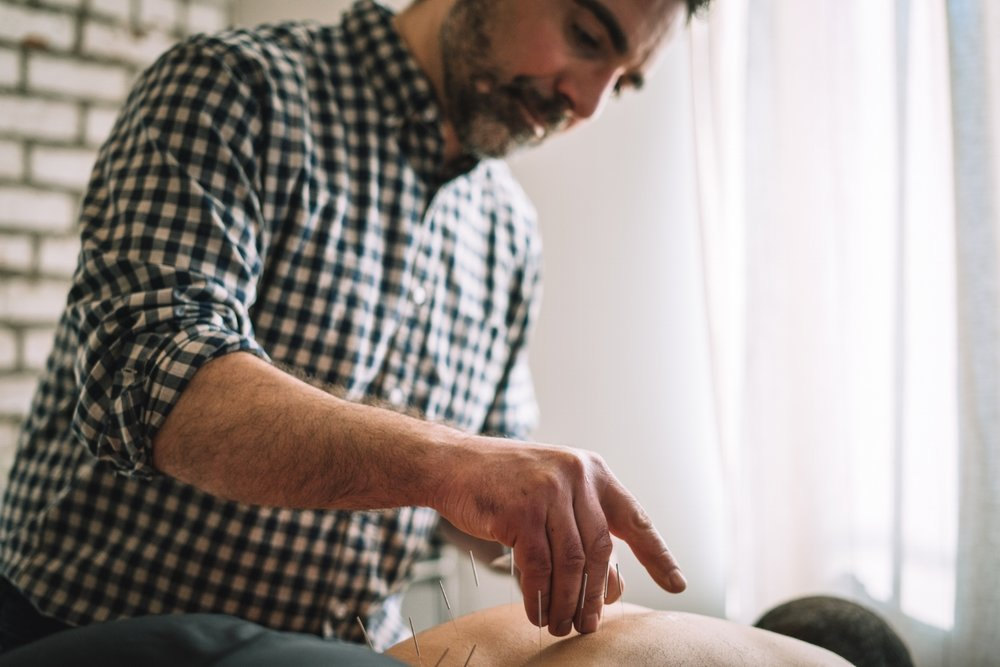Relieving back pain with acupuncture.