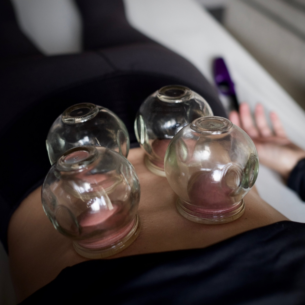 Cupping away the pain